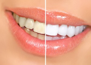 teeth whitening in Crete, teeth bleaching in Crete, teeth whiten malia,bleaching teeth, teeth whitening gel, get white teeth, teeth whitening bleach, professional teeth whitening, teeth whitening abroad, teeth whitening prices, laser teeth whitening, dental whitening