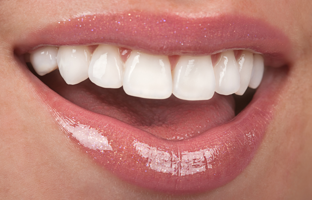 how to keep composite veneers white