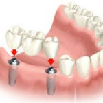 dental bridge 3 crowns ober tooth implants