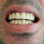 tandartreizen,dental holiday, dental holidays, tandarts buitenland,tandarts Griekenland