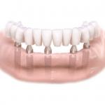 implantaat, tand implantaat, klikgebit allon4,allon6, allon2