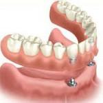 kosten klikgebit op implantaten, tandimplaten prijs,implantaten turkije, kies implantaat kosten, klikgebit bovenkaak, klikgebit kosten, klikgebit op implantaten, klikgebit prijs