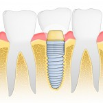 dental implant abroad, dental implant in greece, cosmetic dentist greece, dental implants in greece
