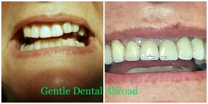 Greece dentist, Greece medical tourism, dentist prices greece, Greece dental tourism, Greece dental implants, tooth implants Greece, tooth implant Greece, cosmetic dentist in greece, tooth crown Greece, teeth implants, Greece teeth implant, Greece teeth crown, Greece teeth bridge, Greece medical tourism Greece, greek medical tourism, Greece tooth implants, Greece tooth implant, Greece tooth crown, Greece teeth implants, Greece teeth implant, Greece teeth crown, Greece teeth bridge, Greece dental veneers, Greece dental surgery, Greece dental practice, Greece dental implant, Greece dental house, Greece dental Crown, Greece dental clinic, Greece dental bridge, Greece dental, dentist Greece, dental veneers Greece, dental tourism greece, dental surgery Greece, dental practice Greece, dental implants Greece, dental implant Greece, dental house Greece, dental Crown Greece, dental cost greece, dental clinic Greece, dental bridge Greece