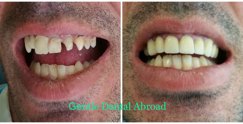 Greece dentist, oth implants Greece, tooth implant Greece, cosmetic dentist in greece, tooth crown Greece, teeth implants, Greece teeth implant, Greece teeth crown, Greece teeth bridge, Greece medical tourism Greece, greek medical tourism, Greece tooth