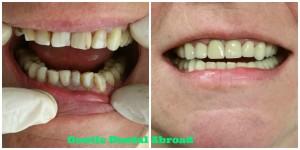 dentist abroad, dentist greece, dental tourism greece, medical tourism greece, dental crown abroad