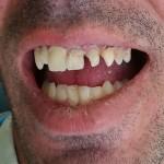 tandartreizen,dental holiday, dental holidays, tandarts buitenland