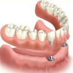 Feste Zähne , dritte zaehne kosten, all on 4, all on 6, festsitzende zahnerzatzauf 4 Implantaten kosten, festsitzende bruecke kosten,