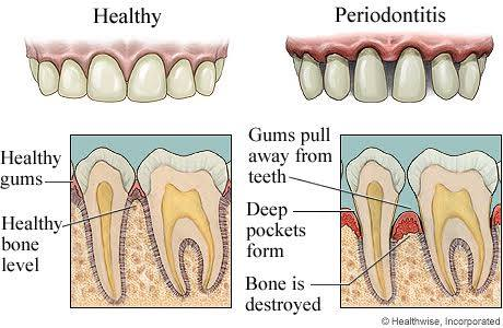 periodental disease symptoms, gum disease symptoms
