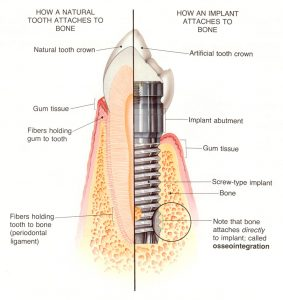 save natural tooth, preserve tooth, implants vs teeth
