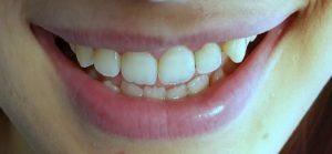 white teeth tips, tips to white teeth , tipe to whitening teeth